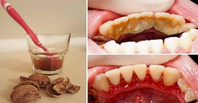 УДАЛЕНИЕ ЗУБНОГО КАМНЯ. 40 г скорлупы грецких орехов, 1 ст. воды. Отварить скорлупу в воде 20 мин. Процедить смесь после того, как она остынет. Замочить на 10 мин зубную щетку в отваре. Почистить ею зубы. Эту процедуру можно повторять 3 р в день — до тех пор, пока зубной камень полностью не исчезнет.