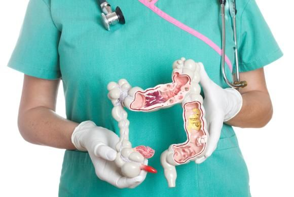 8 Things to Know About IBS