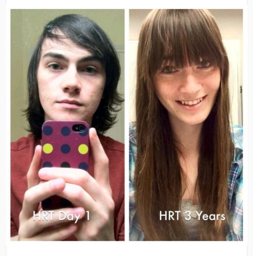 The 25 Best Post Op Mtf Ideas On Pinterest  Mtf Before And After, Teardrop Implants And Post -4863