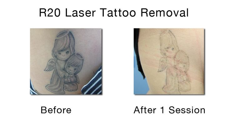 49 best images about laser tattoo removal on pinterest for Laser tattoo removal manhattan