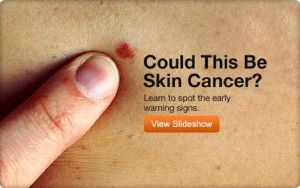 First Signs Skin Cancer Warning
