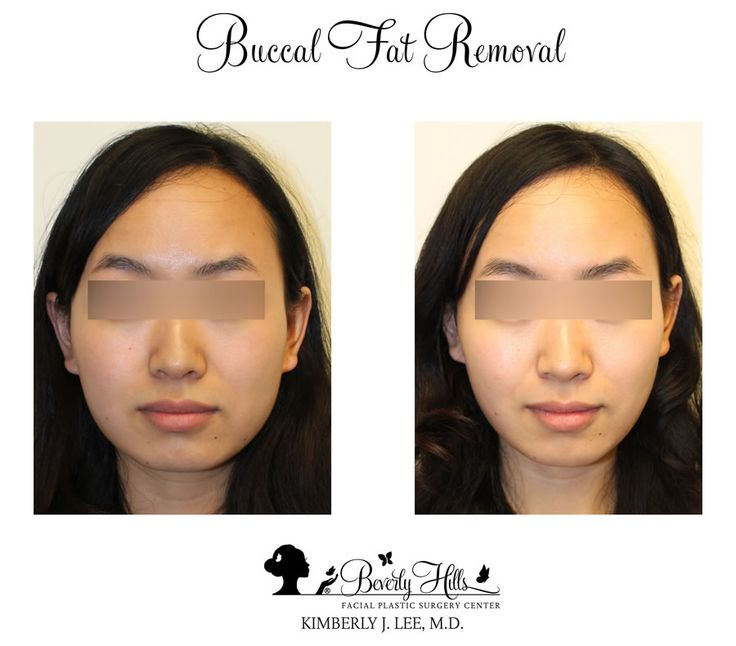 Opinion Beverly hills facial reconstructive surgery was