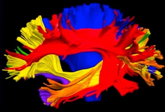 With autism, altered white matter in brain might be a source of explanations