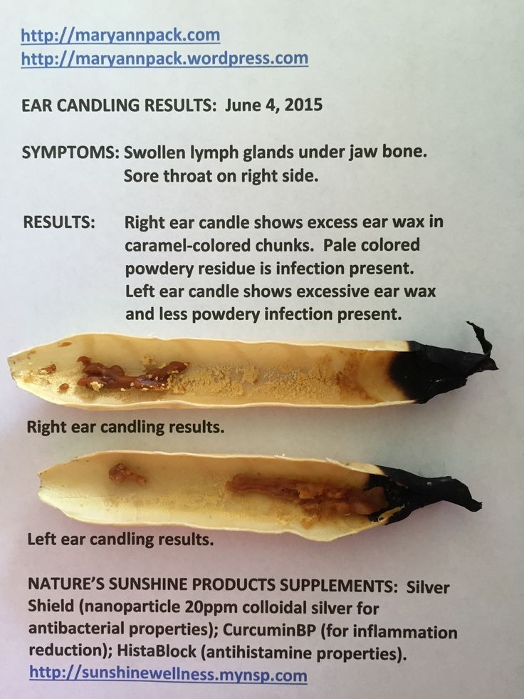Ear Candling Results | Medicine, Benefit and Ear candling