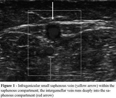 The small saphenous vein courses more deeply within the saphenous compartment, delimited by the muscle fasciae, and more superficially within the saphenous vein (Figure 1). At the lower margin of the popliteal fossa, the saphenous compartment ceases to exist because the muscle fascia adheres to the fasciae of the gastrocnemius muscles to insert into the femoral condyles. The popliteal fascia represents the extension of the saphenous fascia, reinforced by the fascial fibers of the…