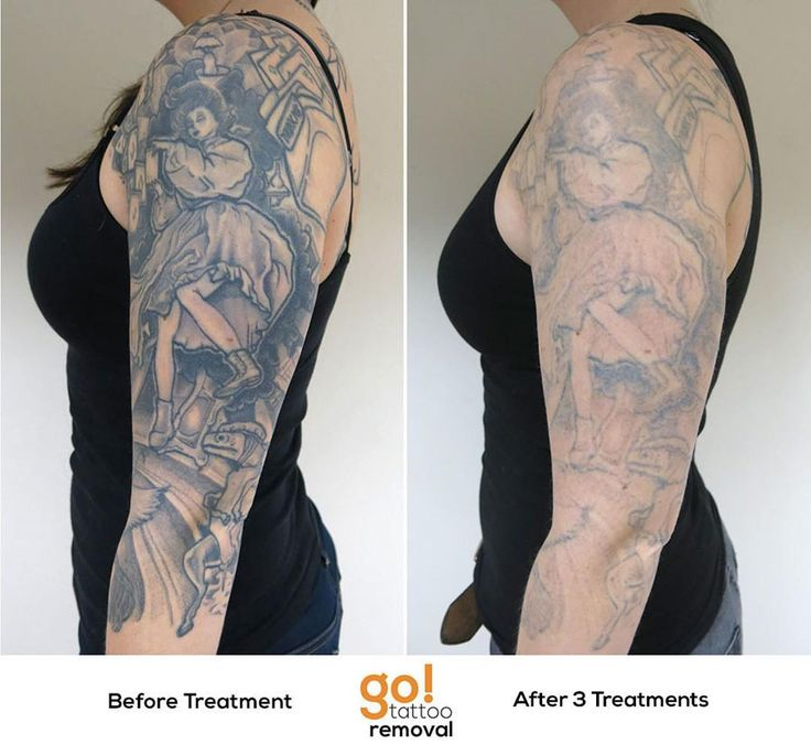 853 best tattoo removal in progress images on pinterest for How soon can you get a tattoo removed