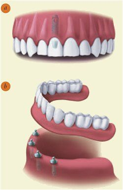 information on dental implants from the American Association of Oral & Maxillofacial Surgeons