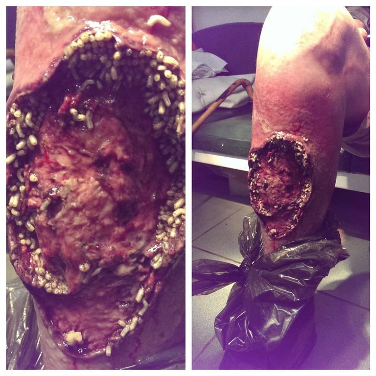 What you are looking at is a diabetic wound on the leg