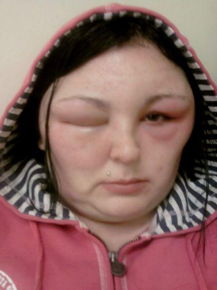 haarfarbe f r allergiker