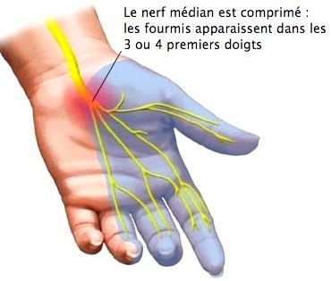 Syndrome du canal carpien ou points trigger?