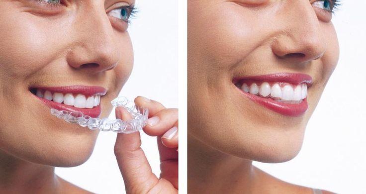 ¿Te imaginas un sistema de ortodoncia totalmente transparente e invisible y que además te permitiera quitártelo cuando más lo necesites como, por ejemplo, para comer y cepillarte los dientes? Todo esto lo tienes en el sistema de Ortodoncia invisible Invisalign.