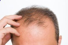 Each hair on your head has a growth cycle. With male pattern baldness, this growth cycle begins to weaken and the hair follicle shrinks, producing shorter and finer strands of hair. #bald #baldness #baldnesscure #baldnesstreatment #hair #hairloss #
