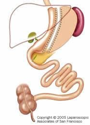 Vertical Sleeve Gastrectomy (VSG) - Also known as Sleeve Gastrectomy, Vertical Gastrectomy