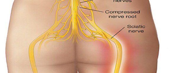 Spune la revedere durerilor de spate! Iată cum sa scapi de dureri de spate in mod natural! Succes în 95% din cazuri!