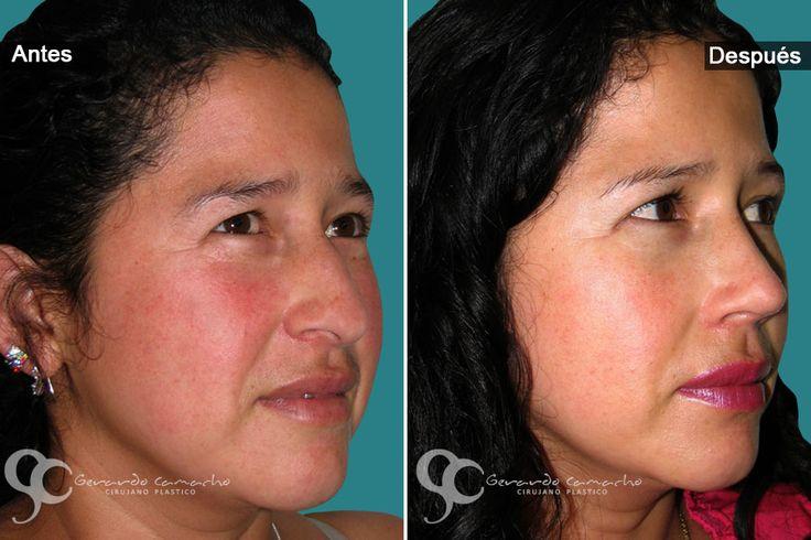 Cirugía Nasal Femenina o Cirugía de Nariz Mujeres Dr. Gerardo Camacho Cirujano Plástico  Estético y Reconstructivo Miembro de la Sociedad Colombiana de Cirugía Plástica  Bogotá –- Colombia Tel: (57)- 3187120345  WhatsApp