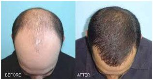 Best Techniques Used for Hair transplant in Delhi
