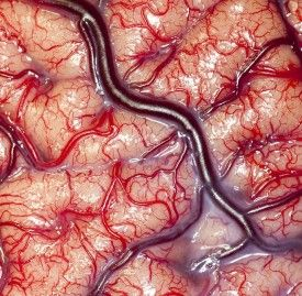 This is what living brain looks like. Neat!