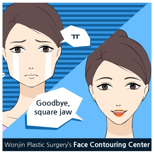 A square jaw is when the lower jaw bone's size is wide and causes a square appearing face. Specifically, the bone beneath the ear can cause a face to appear bigger. Maxillofacial square jaw reduction surgery at Wonjin Plastic Surgery is required to remove the angular jaw line and create a slender V line.