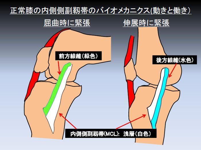 靭帯損傷 膝 慢性病の治療 方法とは??慢性的な膝の痛みの症状は治らない キネシオテープにテラヘルツ加工