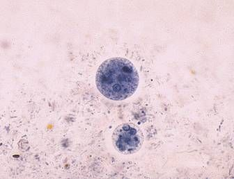 Entamoeba coli (larger) and Entamoeba histolytica (smaller) cysts
