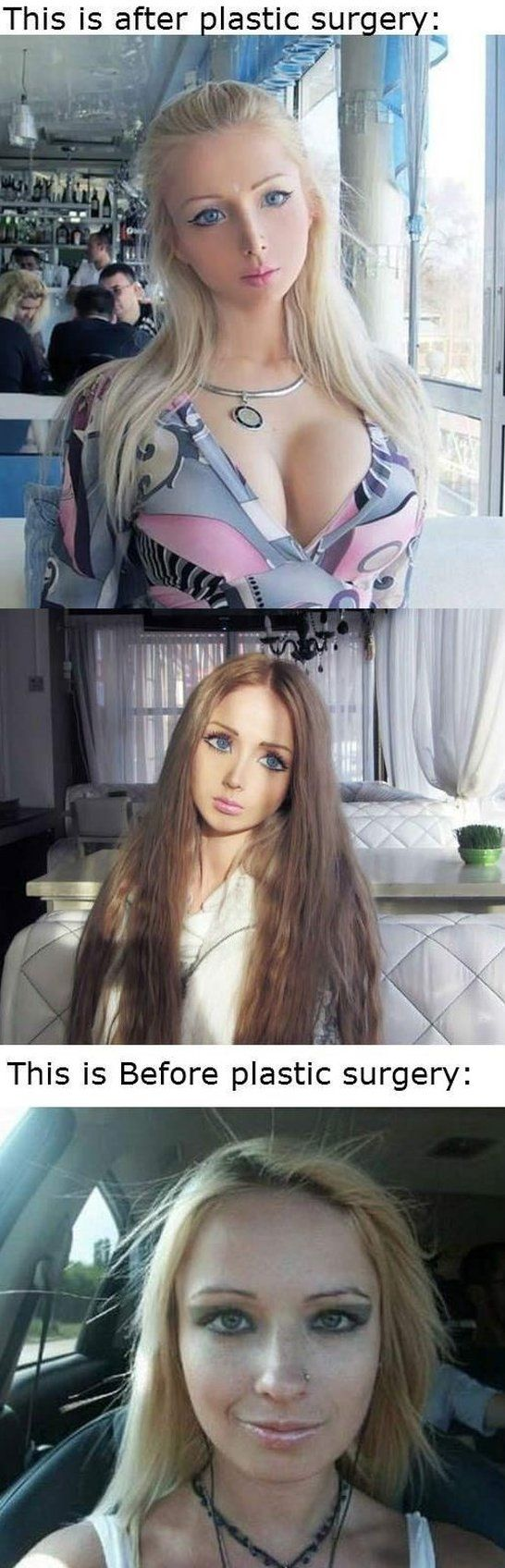 Real life barbie<< This is BEYOND sad....Why would you want to look like that in the first place...? wow...this makes me want to cry..