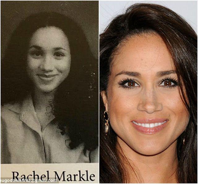Meghan Markle's Shocking Plastic Surgery Transformation