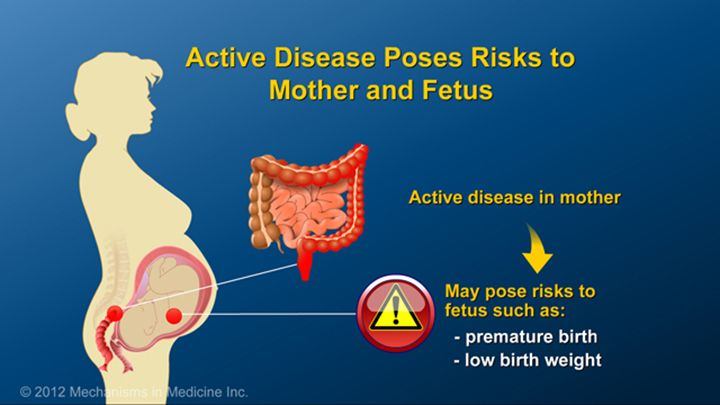 Because active disease may pose risks to both the pregnant mother and developing fetus, appropriate steps should be taken to control IBD prior to and during pregnancy. Possible risks to the fetus when the mother has active disease include premature birth and low birth weight.slide show: optimizing pregnancy outcomes with ibd. this slideshow describes issues females with ibd should consider before getting pregnant. the fertility of patients with ibd and healthy people is compared, and the…