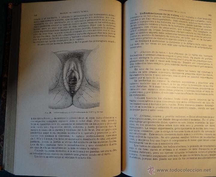 TRATADO DE CIRUGIA CLINICA. TILLAUX. ESPASA. 2º ED. 1890. ILUSTRADO. - Foto 11