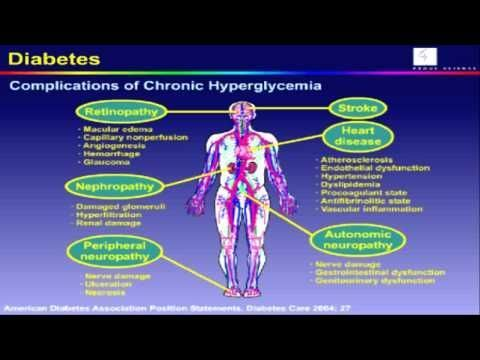 Low Sugar Diabetes Symptoms- Sugar Diabetes Symptoms-blood sugar is too low -  CLICK HERE for the Big Diabetes Lie #diabetes #diabetes1 #diabetestype2 #diabetestreatment  ,The symptoms or signs of low sugar diabetes symptoms in children stems from two sources. First, low or declining level of blood sugar triggers the release of adrenaline or hormones adrenaline and... - #Diabetes #Diabetesinchildren #DiabetesSymptoms