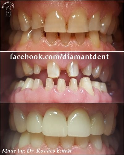 New Smile, new life :) Before After Photo! Have a Bright smile!