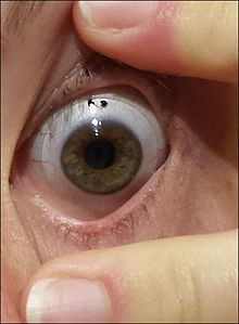 Scleral lens, with visible outer edge resting on the sclera of a patient with severe dry eye syndrome.