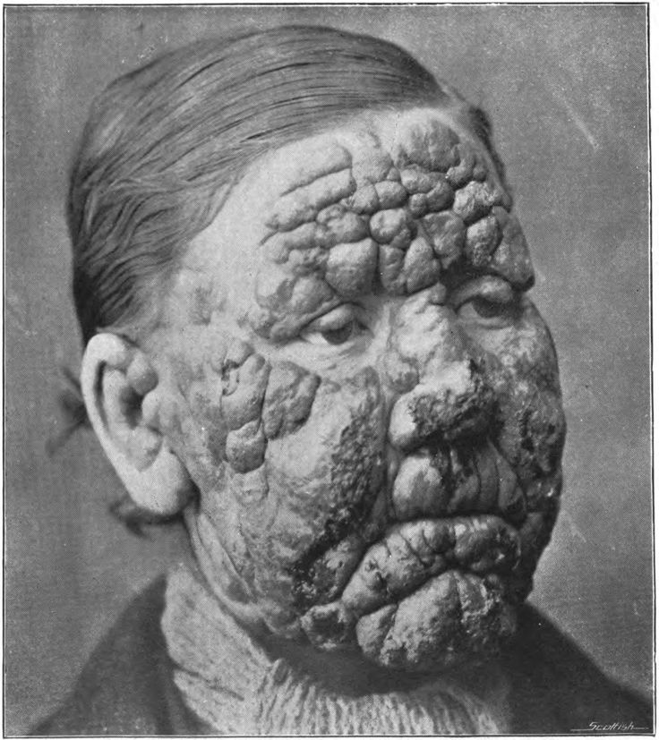 Leprosy - A disease of the peripheral nervous system and upper mucosa of the respiratory tract that causes external skin lesions.  This disease has affected humans for more than 4000 years and has turned its' victims into social outcasts, forcing them to spend their lives awau from others in leper colonies.