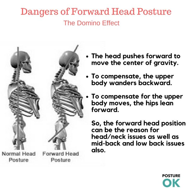 """Where Your Head Position Today for <a href=""""http://postureok.com/our-services/"""">Good Back Posture</a>? Get  Ergonomic Study Evaluation."""