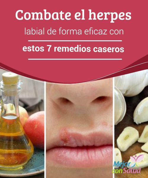 Combate el herpes labial de forma eficaz con estos 7 remedios caseros   La aplicación de algunos remedios caseros puede ayudar a prevenir las complicaciones del #HerpesLabial. Te compartimos los 7 mejores.  #RemediosNaturales  #Labios