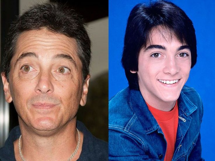 80s Stars Then And Now:  Scott Baio (In the 80s, the Happy Days star was the biggest heartthrob. Scott Baio did not do much acting after Happy Days. After his acting career, Scott Baio got more involved in politics. He describes his political views as conservative. Recently he endorsed Donal Trump in the Presidential election. In 2016, he spoke at the opening night of the Republican National Convention. While in an interview with Ashley Webster, Baio described President Barack Obama as…
