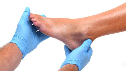 Getting a foot hold on plantar fasciitis: Learn how to prevent and treat this real pain in the foot. #health #feet