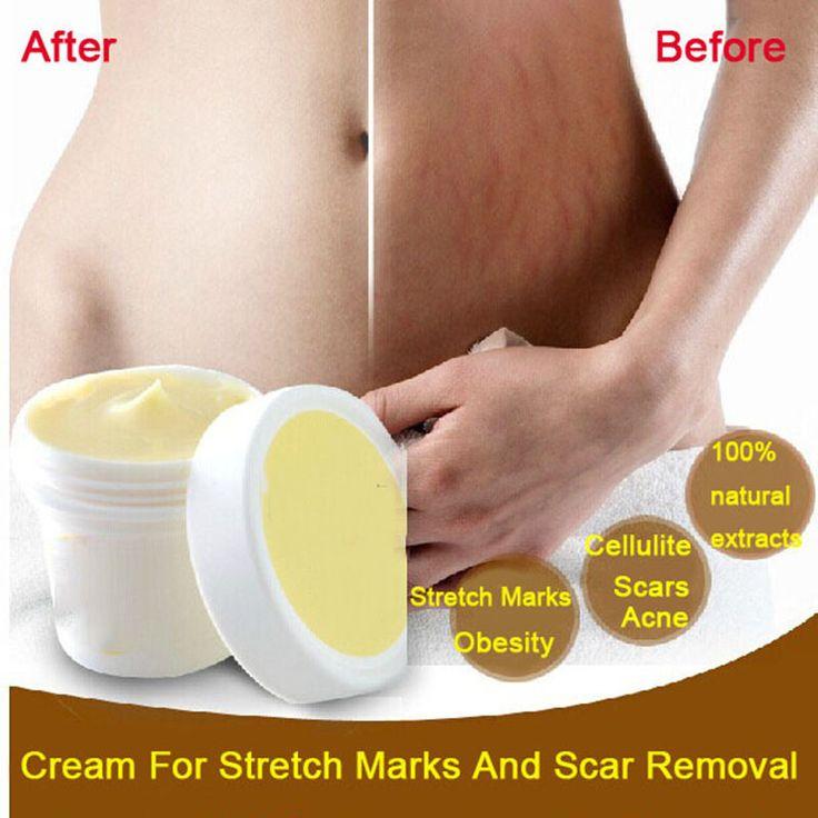 Stretch Marks And Scar Removal Cream Maternity Skin Body Cream Remove Scar Care