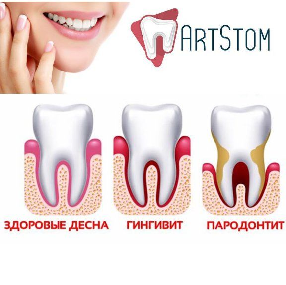 Как избежать пародонтит? 5 простых советов! ✔️Посещайте стоматолога раз в полгода. Регулярная профессиональная чистка зубов снижает риск возникновения кариеса и воспаления дёсен к нулю. ✔️Соблюдайте навыки личной гигиены. Домашняя чистка тоже должна быть правильной. Пользуйтесь ополаскивателем и чистите зубы два раза в день. ✔️Сбалансировано и рационально питайтесь. Витамины и минералы, поступающие со здоровой пищей, укрепляют ткани. ✔️Контролируйте хронические соматические заболевания…