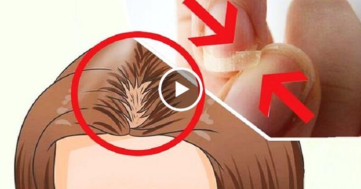 У вас ломкие ногти, выпадают волосы и вы плохо спите? Просто ешьте эту смесь 7 дней и получи невероятные результаты!