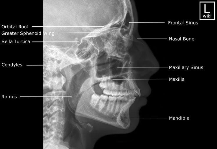 Facial Bones Radiographic Anatomy - wikiRadiography