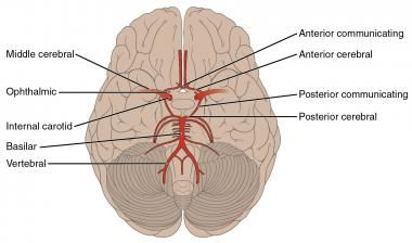 Schematic of the circle of Willis and cerebral vas