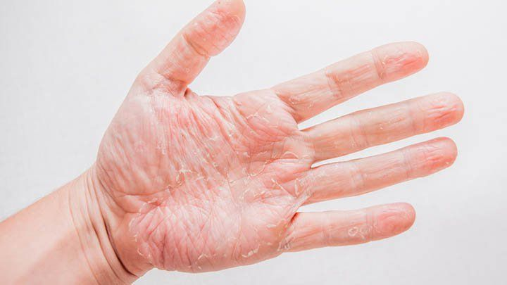 Invigorate your dry peeling hands this summer with these soothing remedies. Will you try this trick?
