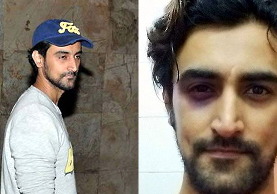 Muay Thai! Kunal Kapoor sweetly blames Thailand sport for bruises