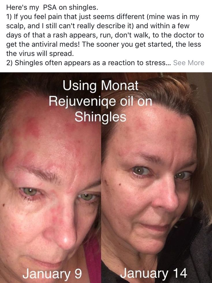 Have you or anyone you know experienced shingles's? Monat