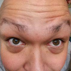 Wie kann man dunkle Ringe unter den Augen entfernen? Hausmittel helfen gegen Augenringe - hier finden Sie die besten Mittel!