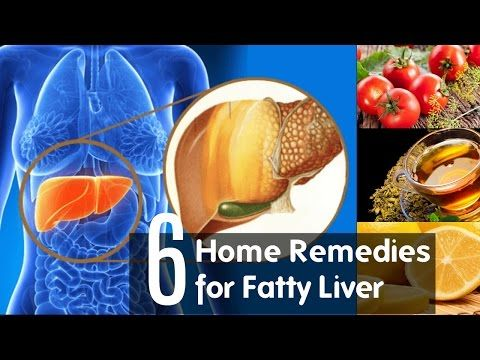 Fatty Liver Home Remedies And Cures | treatment for fatty liver disease -  CLICK HERE for the Liver Tracker #liver #liverdiet  #liverrecipes  #liversymptoms  #livertreatment Fatty Liver: Home Remedies And Cures. know treatment for fatty liver disease. This video about home remedies for fatty liver. You will get 6 natural ways to cure fatty liver disease.  A busy... - #Liver