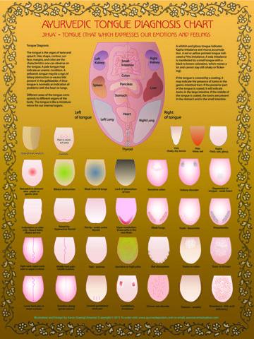 Ayurvedic tongue diagnosis (looking for a bigger version..)