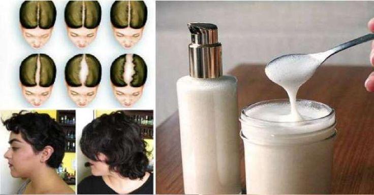 Si tienes problemas de crecimiento de cabello, hoy te enseñaré una receta para ..... de bicarbonato de sodio que te ayudará a crecer tu cabello.
