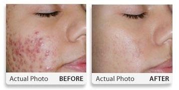 miel de manuka contre l'acne