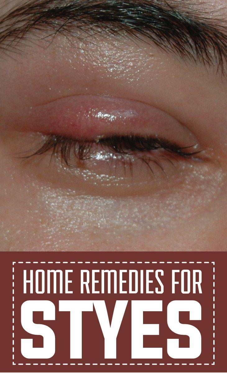 how to get rid of eye stye home remedies